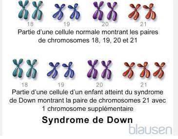 anomalie chromosomique - syndrome de Down
